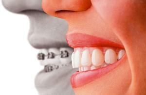 Dentista a Cosenza, Dentista a Rende, Medicina Estetica a Cosenza, Medicina Estetica a Rende