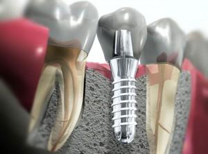 implantologia 3